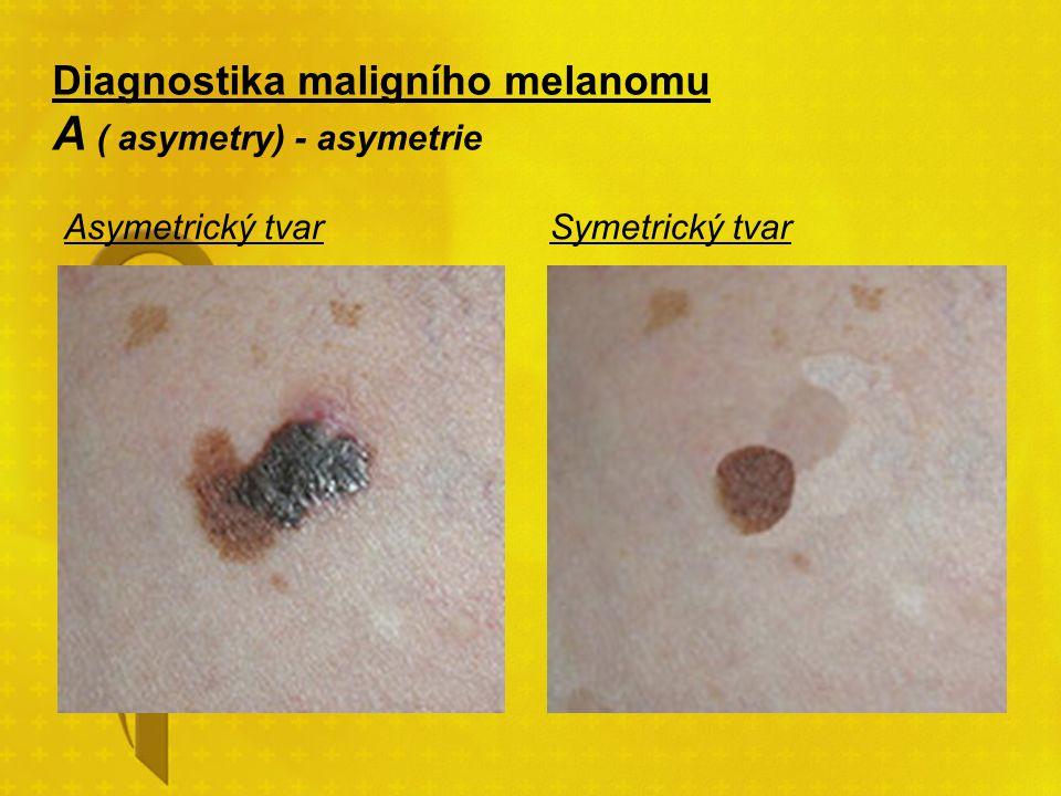 Diagnostika maligního melanomu A ( asymetry) - asymetrie