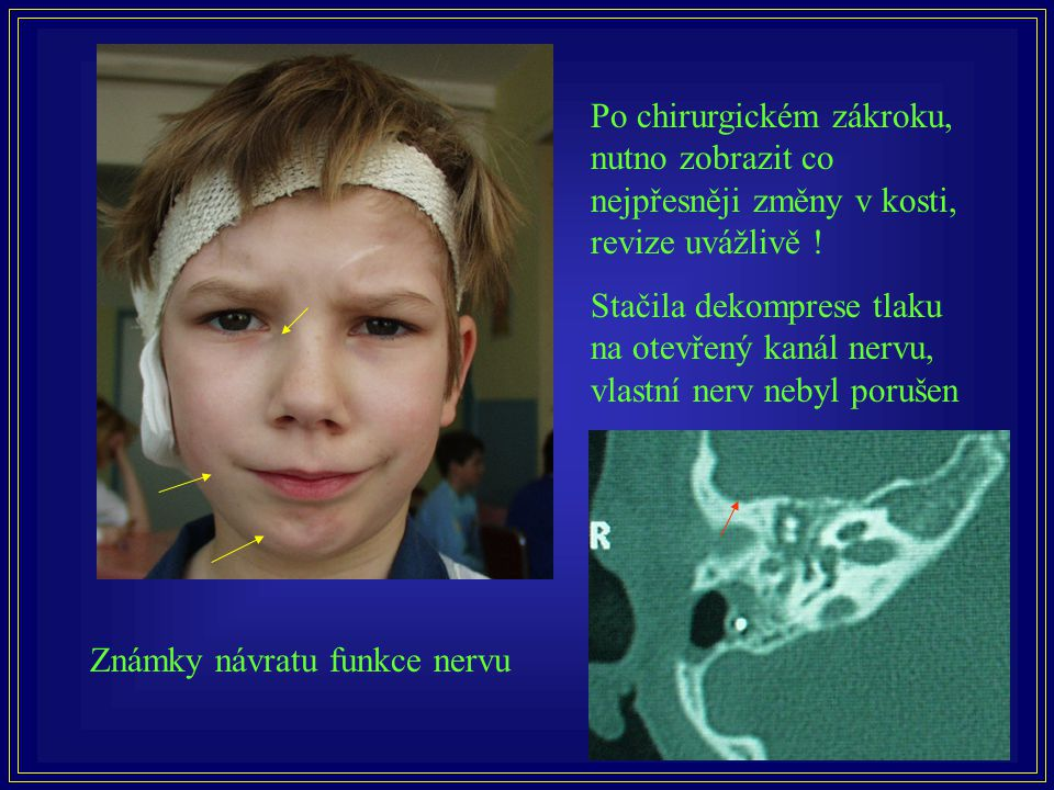 Po chirurgickém zákroku, nutno zobrazit co nejpřesněji změny v kosti, revize uvážlivě !