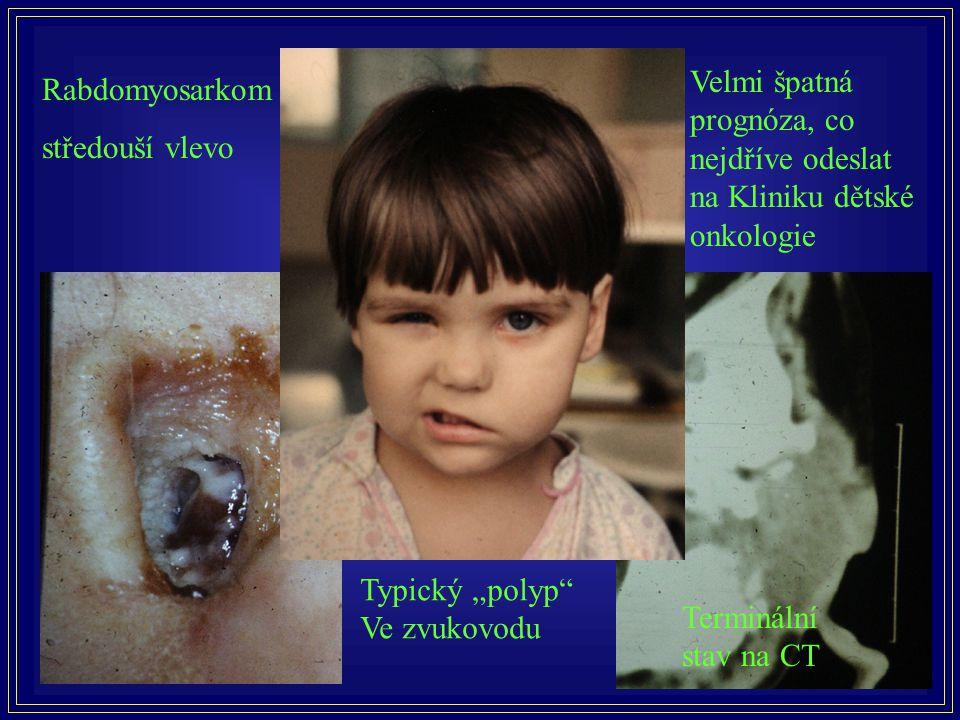 Velmi špatná prognóza, co nejdříve odeslat na Kliniku dětské onkologie