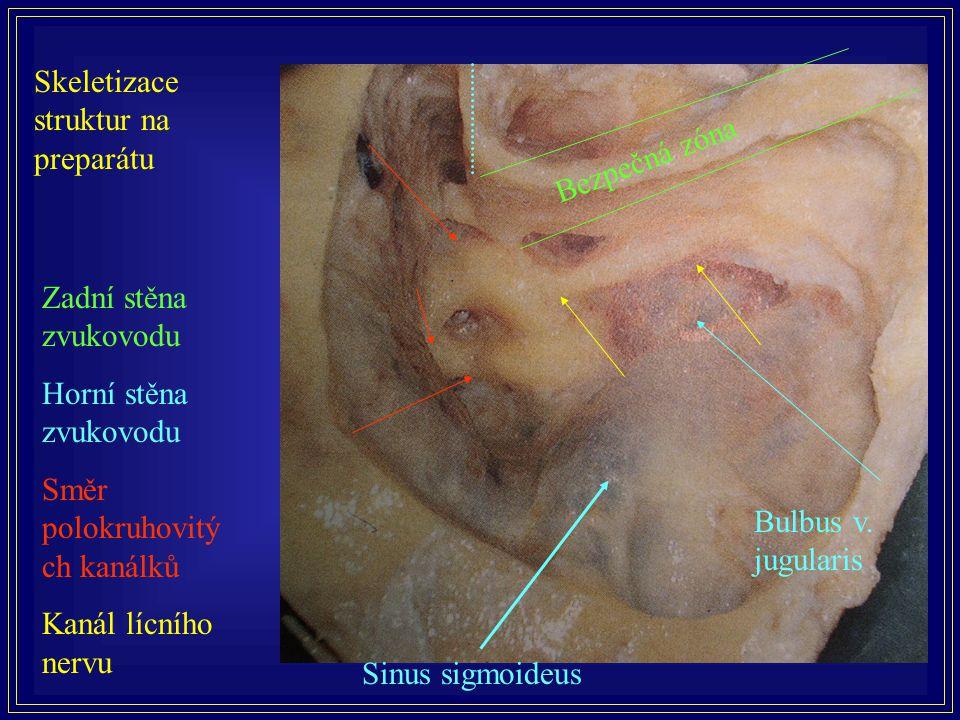 Skeletizace struktur na preparátu