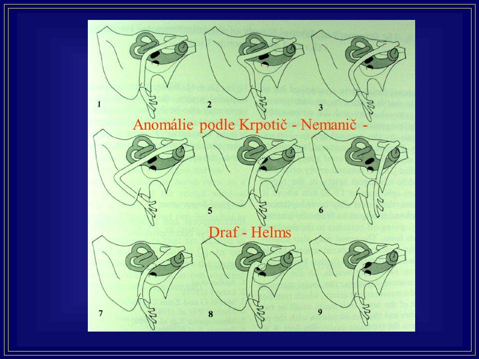Běžnější anomálie průběhu lícního nervu
