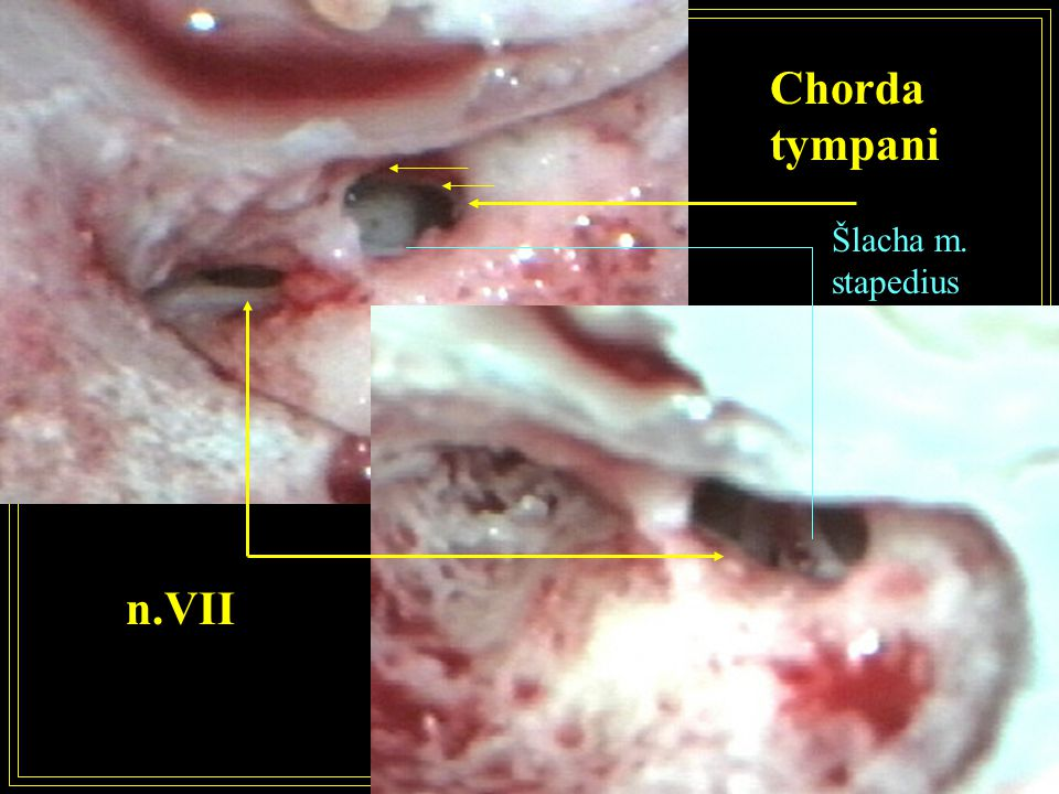 Chorda tympani Šlacha m. stapedius n.VII