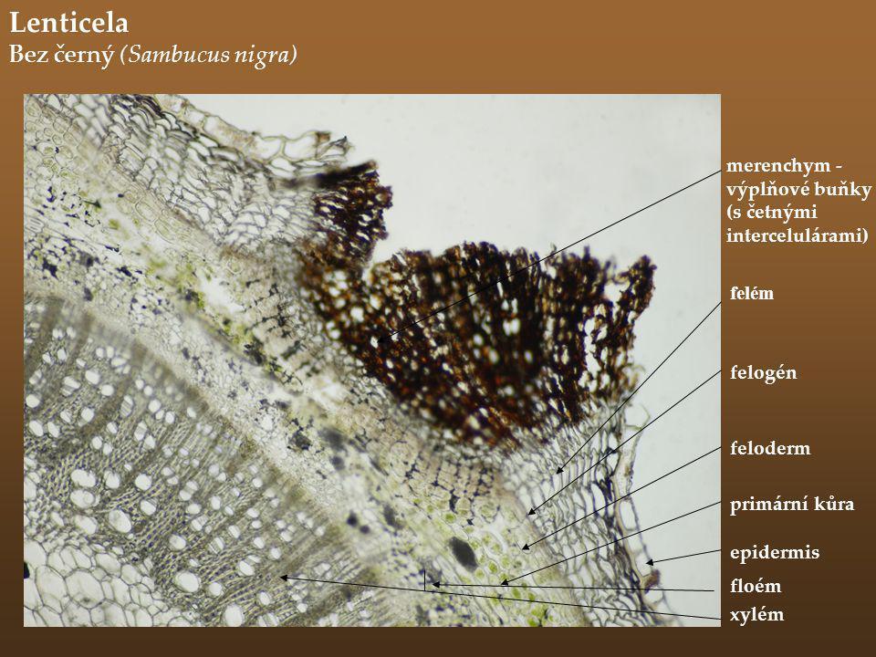 Lenticela Bez černý (Sambucus nigra) merenchym - výplňové buňky