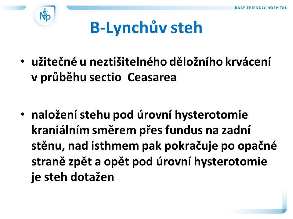 B-Lynchův steh užitečné u neztišitelného děložního krvácení v průběhu sectio Ceasarea.