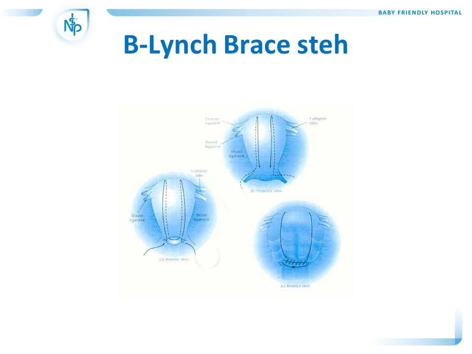 B-Lynch Brace steh