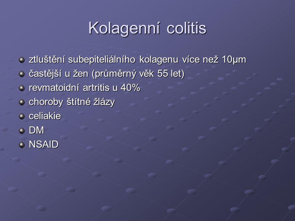 Kolagenní colitis ztluštění subepiteliálního kolagenu více než 10µm