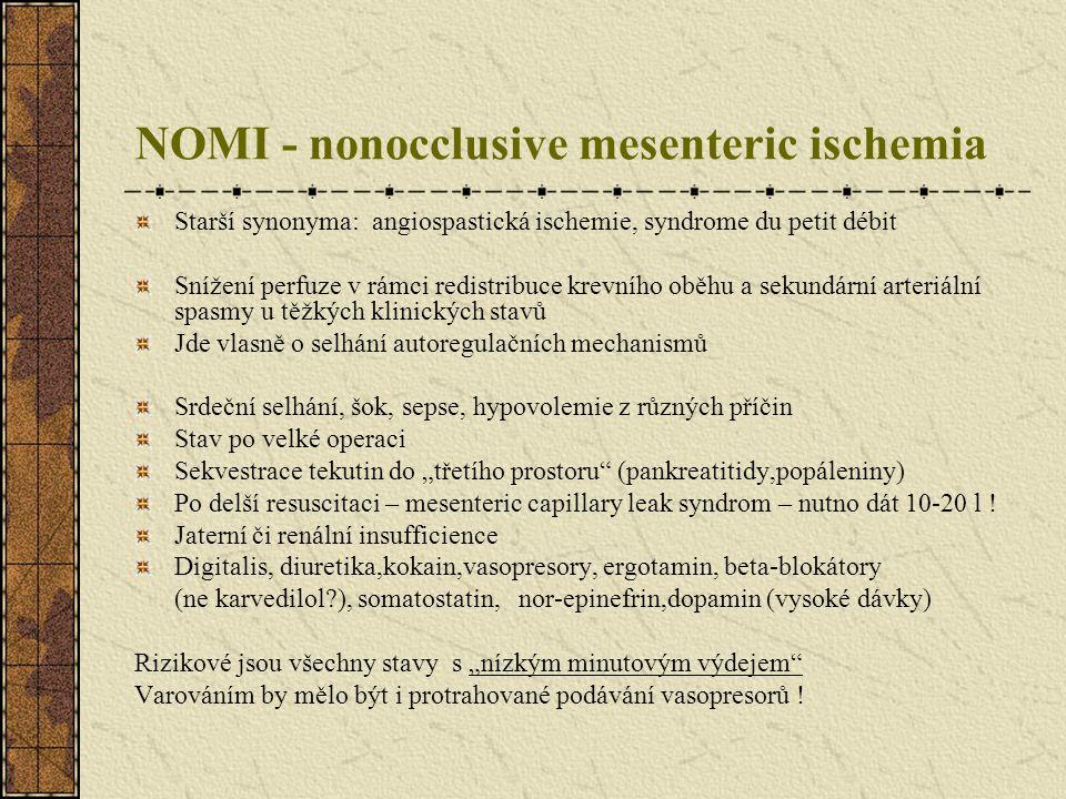NOMI - nonocclusive mesenteric ischemia