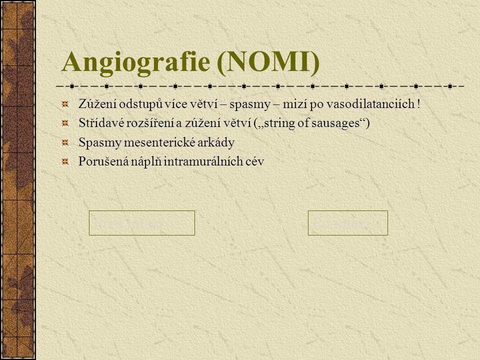 Angiografie (NOMI) Před infuzí Po infuzi