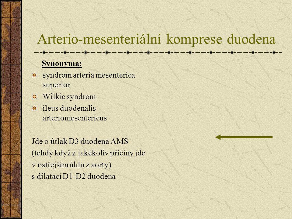Arterio-mesenteriální komprese duodena