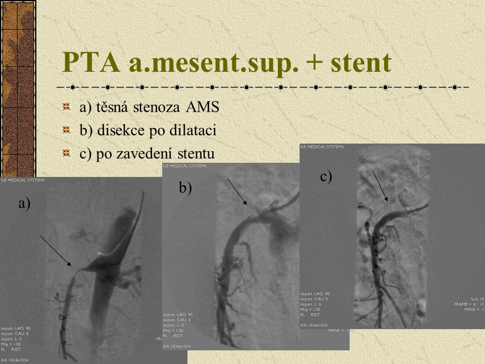 PTA a.mesent.sup. + stent a) těsná stenoza AMS b) disekce po dilataci