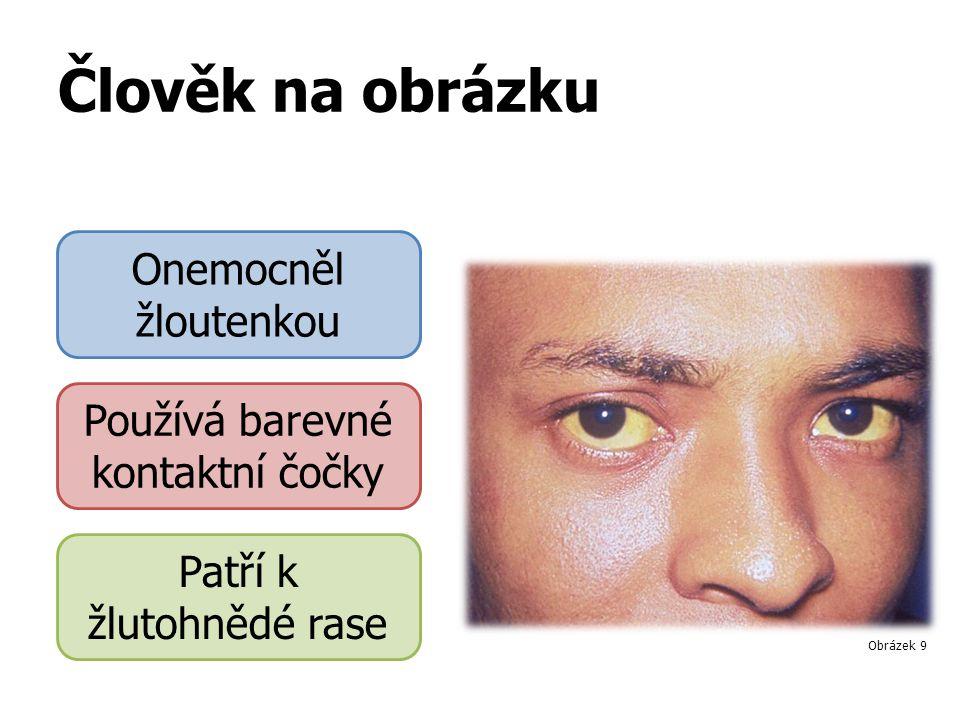 Člověk na obrázku Onemocněl žloutenkou Používá barevné kontaktní čočky