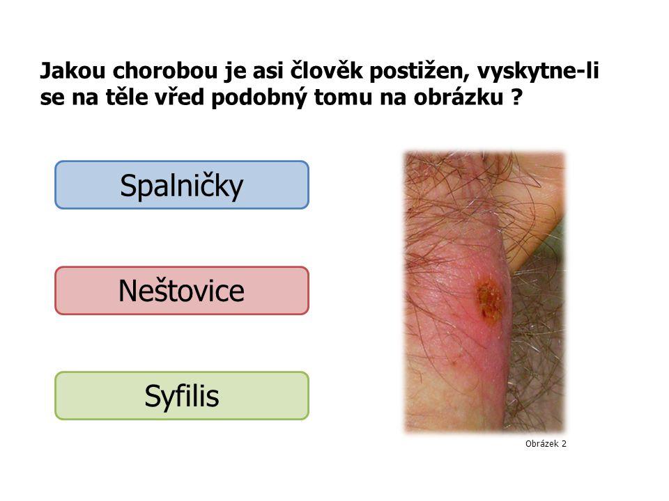 Spalničky Neštovice Syfilis
