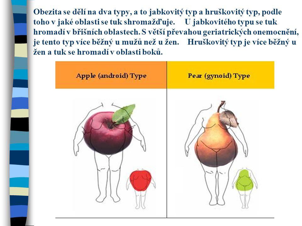 Obezita se dělí na dva typy, a to jabkovitý typ a hruškovitý typ, podle toho v jaké oblasti se tuk shromažďuje.