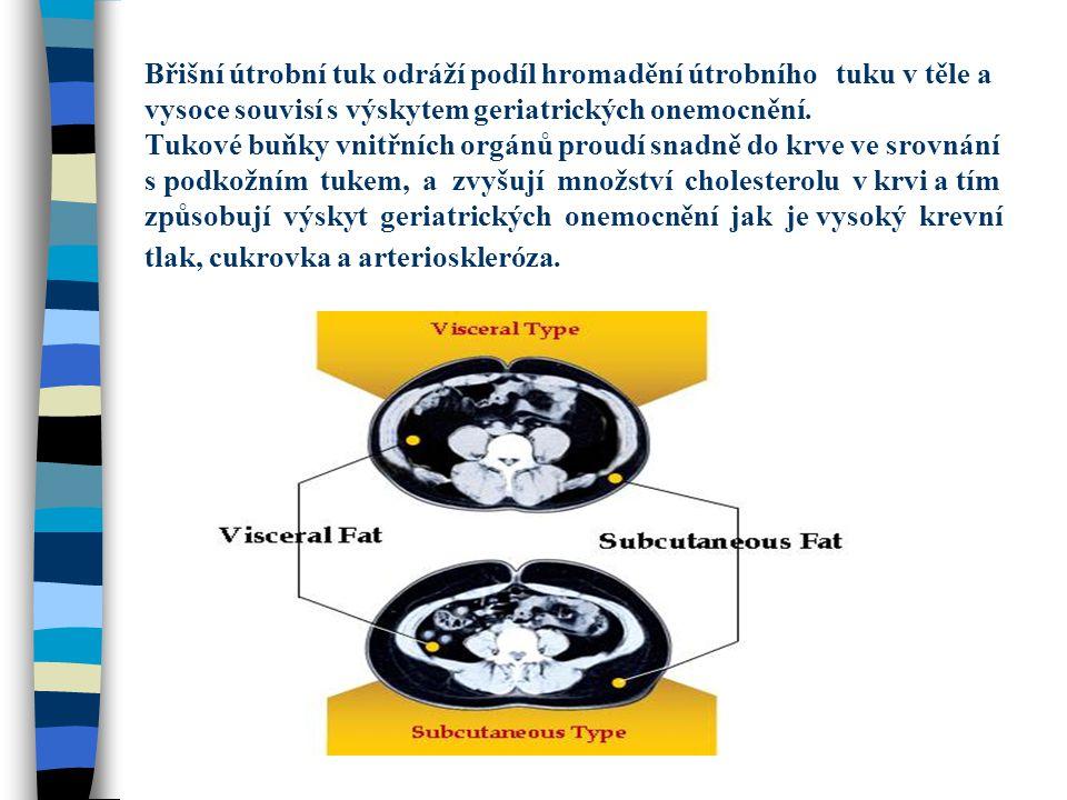Břišní útrobní tuk odráží podíl hromadění útrobního tuku v těle a vysoce souvisí s výskytem geriatrických onemocnění.