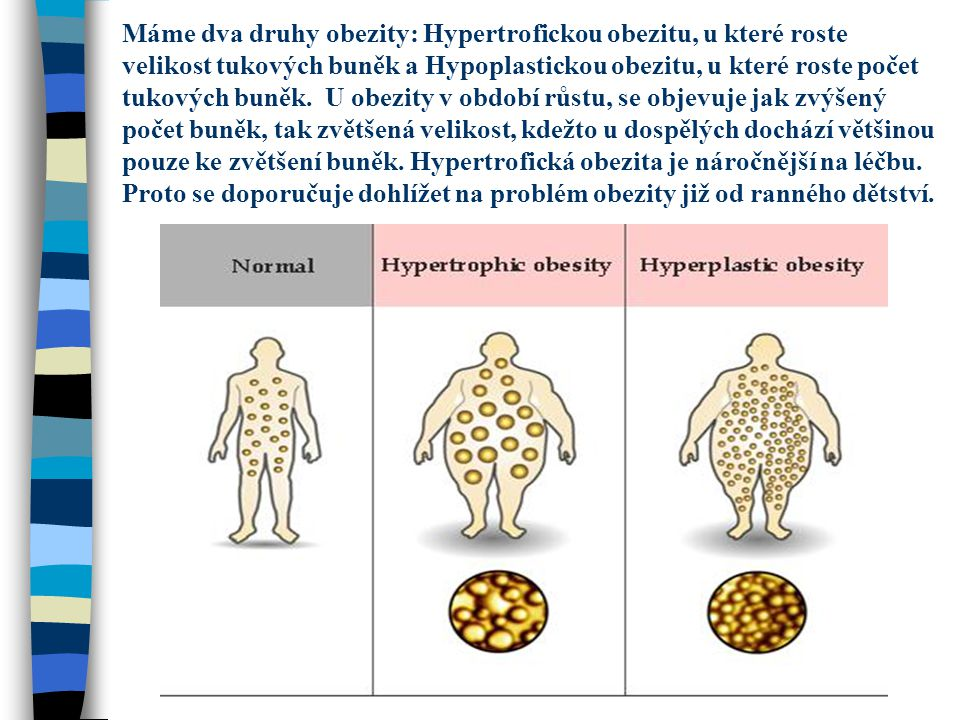 Máme dva druhy obezity: Hypertrofickou obezitu, u které roste velikost tukových buněk a Hypoplastickou obezitu, u které roste počet tukových buněk.