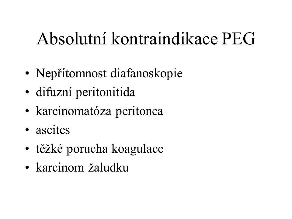 Absolutní kontraindikace PEG