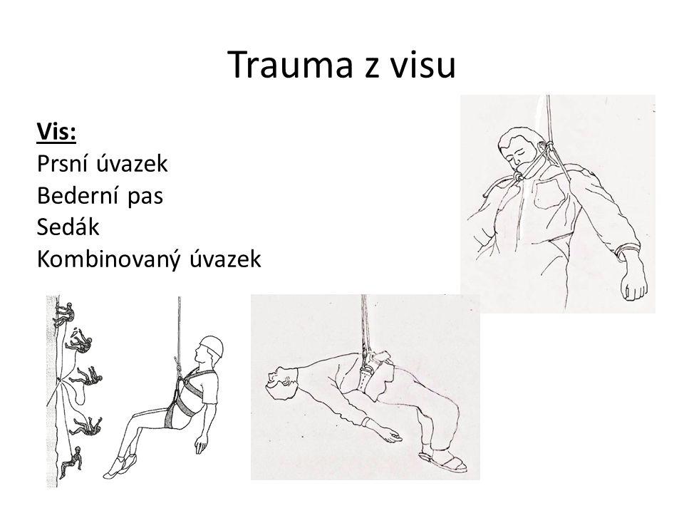 Trauma z visu Vis: Prsní úvazek Bederní pas Sedák Kombinovaný úvazek