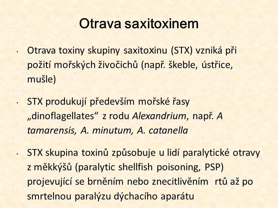 13131313 Otrava saxitoxinem. Otrava toxiny skupiny saxitoxinu (STX) vzniká při požití mořských živočichů (např. škeble, ústřice, mušle)