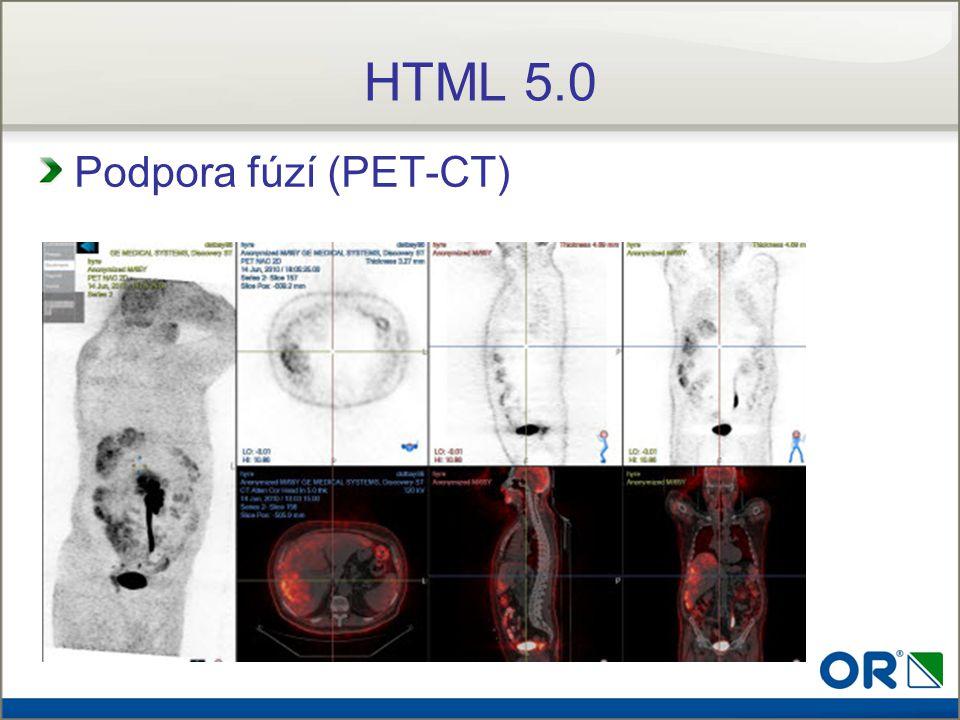 HTML 5.0 Podpora fúzí (PET-CT)