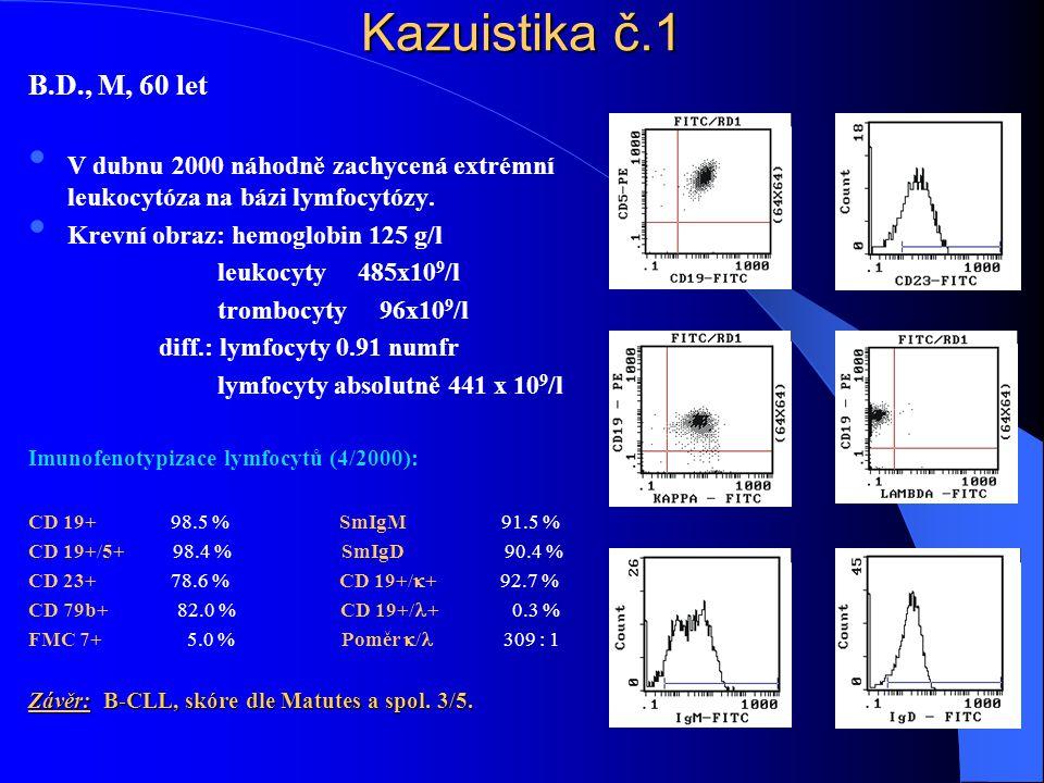 Kazuistika č.1 B.D., M, 60 let. V dubnu 2000 náhodně zachycená extrémní leukocytóza na bázi lymfocytózy.