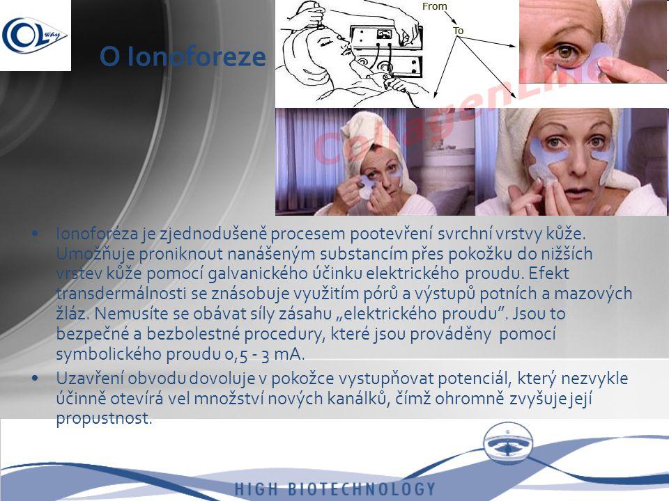 O Ionoforeze