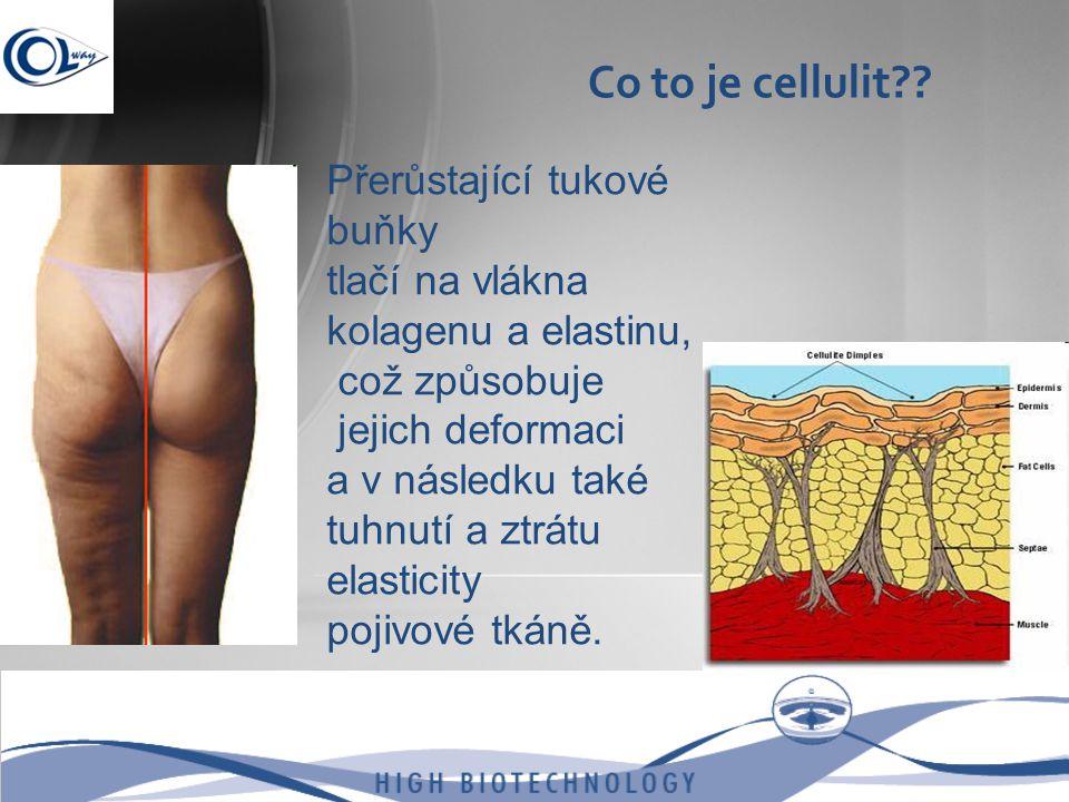 Co to je cellulit Přerůstající tukové buňky tlačí na vlákna