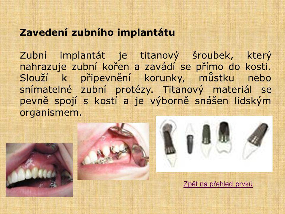 Zavedení zubního implantátu