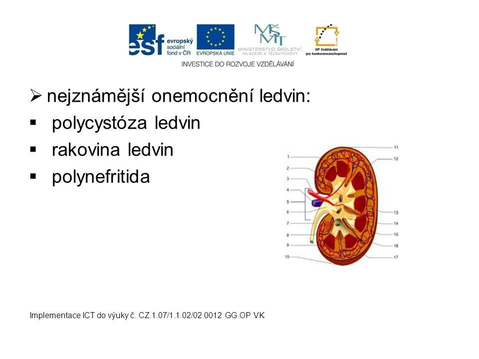nejznámější onemocnění ledvin: polycystóza ledvin rakovina ledvin