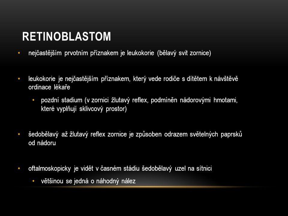 Retinoblastom nejčastějším prvotním příznakem je leukokorie (bělavý svit zornice)