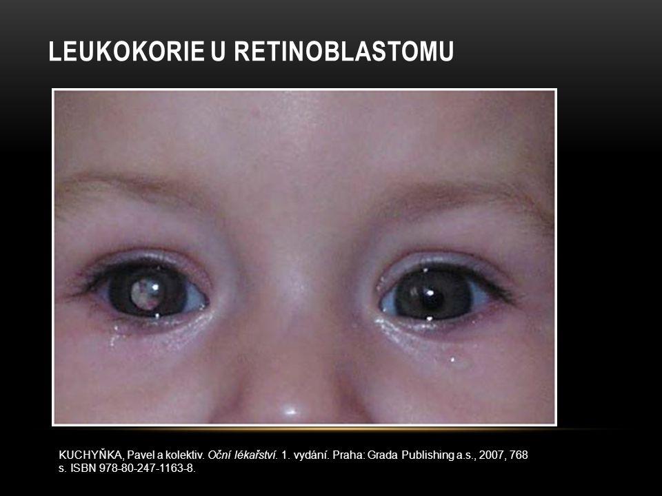 Leukokorie u Retinoblastomu