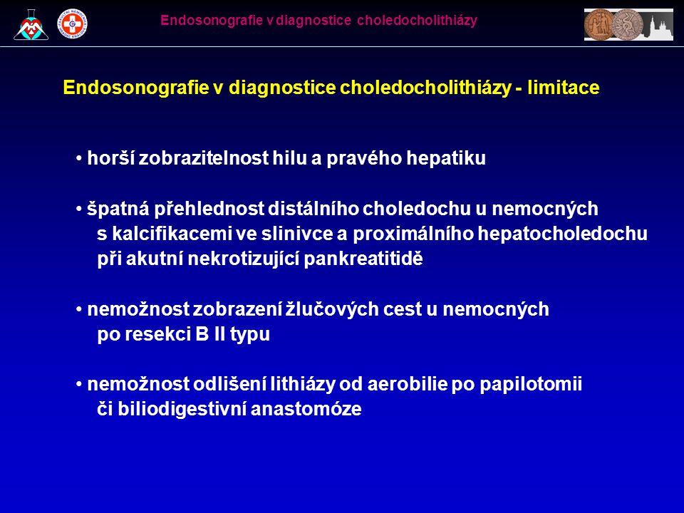 Endosonografie v diagnostice choledocholithiázy - limitace