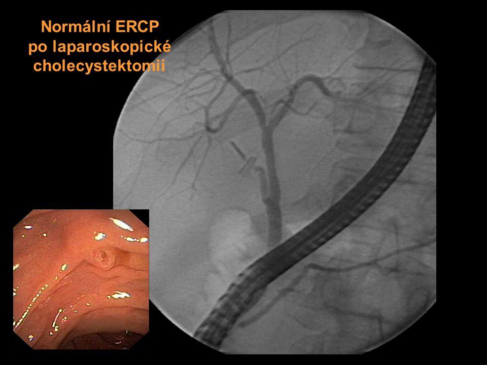 Normální ERCP po laparoskopické cholecystektomii