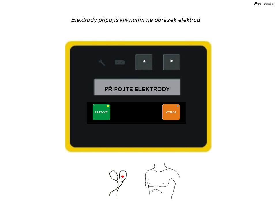 Elektrody připojíš kliknutím na obrázek elektrod