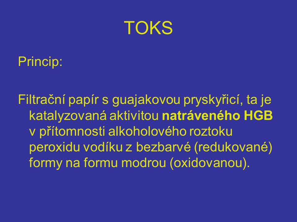 TOKS Princip: