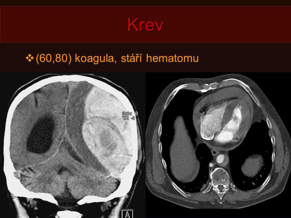 Krev (60,80) koagula, stáří hematomu