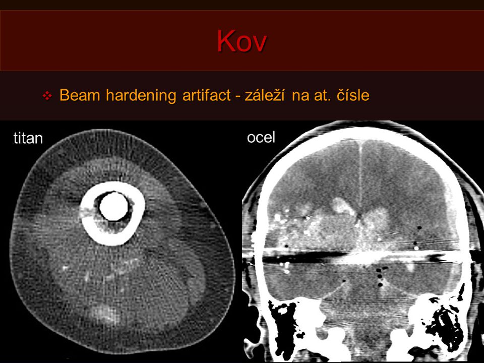 Kov Beam hardening artifact - záleží na at. čísle titan ocel