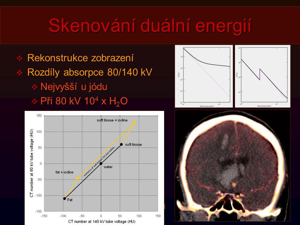 Skenování duální energií
