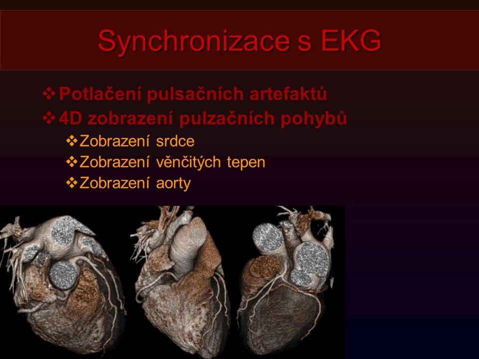 Synchronizace s EKG Potlačení pulsačních artefaktů