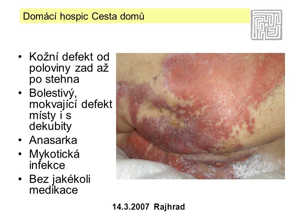 Kožní defekt od poloviny zad až po stehna