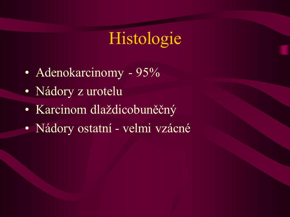 Histologie Adenokarcinomy - 95% Nádory z urotelu