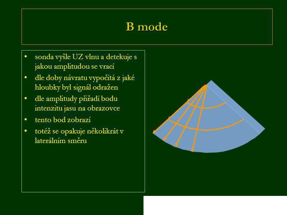 B mode sonda vyšle UZ vlnu a detekuje s jakou amplitudou se vrací