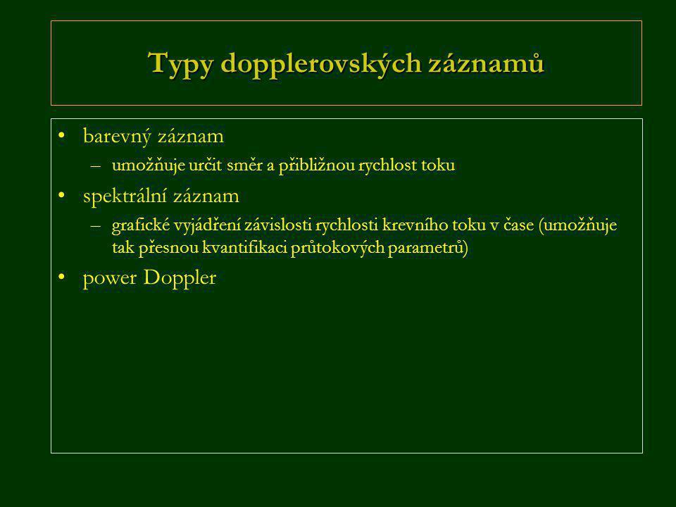 Typy dopplerovských záznamů