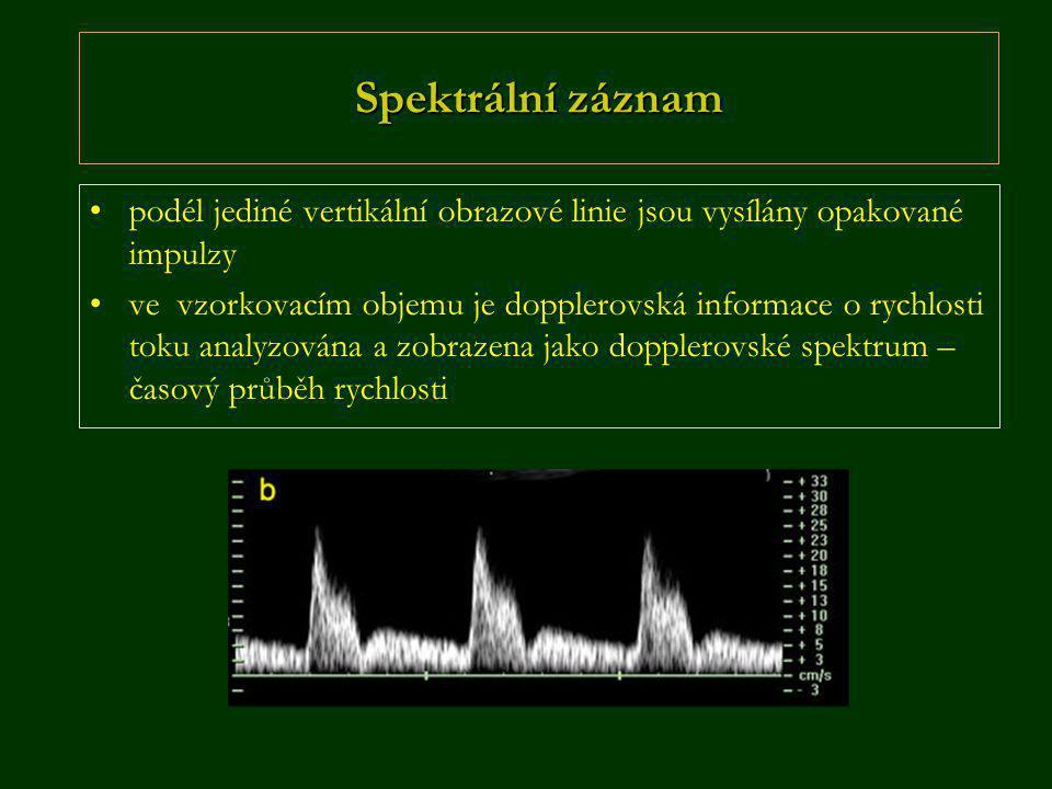 Spektrální záznam podél jediné vertikální obrazové linie jsou vysílány opakované impulzy.