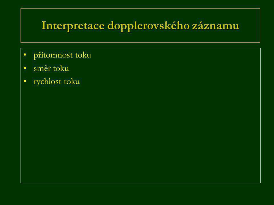 Interpretace dopplerovského záznamu