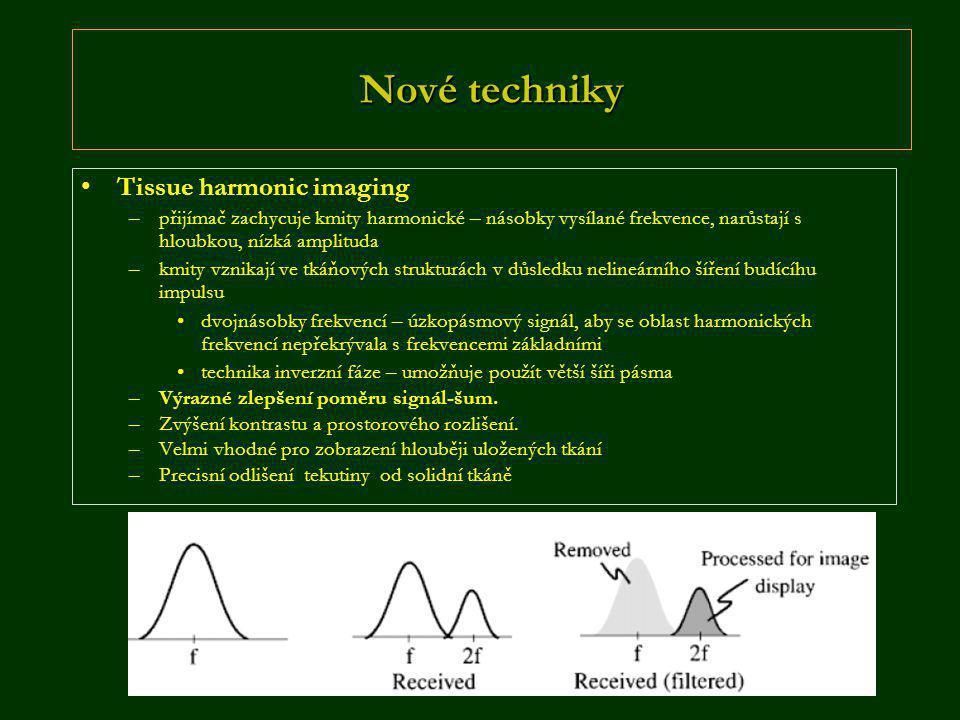 Nové techniky Tissue harmonic imaging