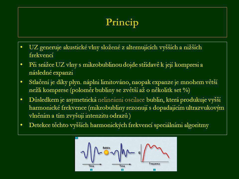 Princip UZ generuje akustické vlny složené z alternujících vyšších a nižších frekvencí.