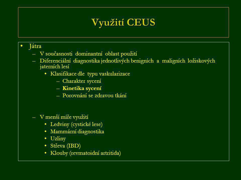 Využití CEUS Játra V současnosti dominantní oblast použití