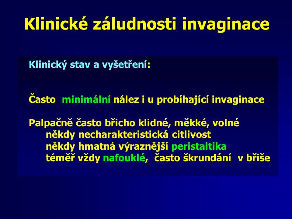 Klinické záludnosti invaginace