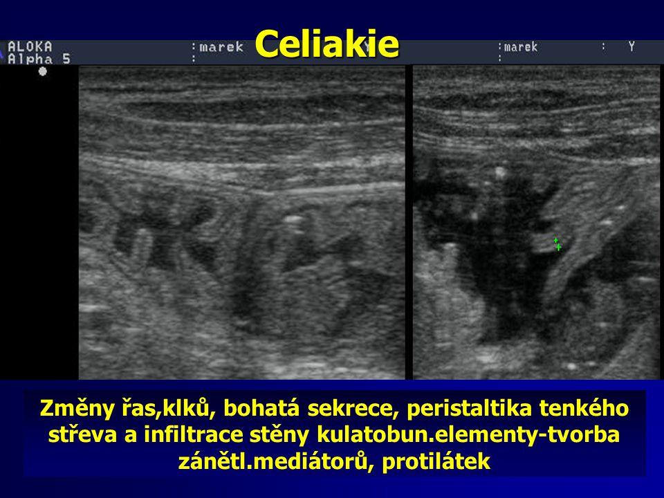 Celiakie Změny řas,klků, bohatá sekrece, peristaltika tenkého střeva a infiltrace stěny kulatobun.elementy-tvorba zánětl.mediátorů, protilátek.