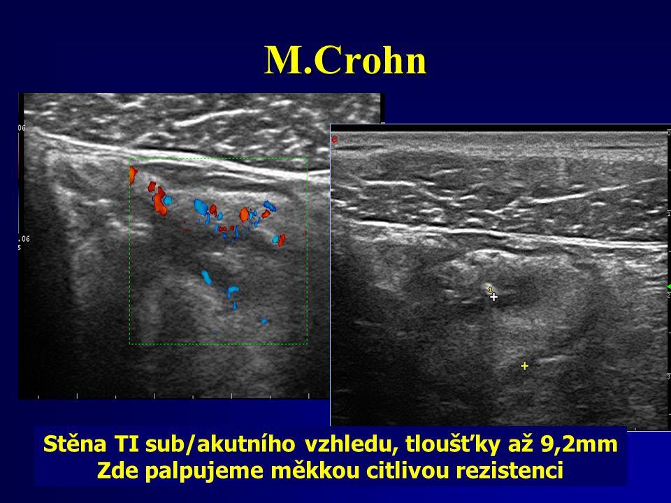 M.Crohn Stěna TI sub/akutního vzhledu, tloušťky až 9,2mm